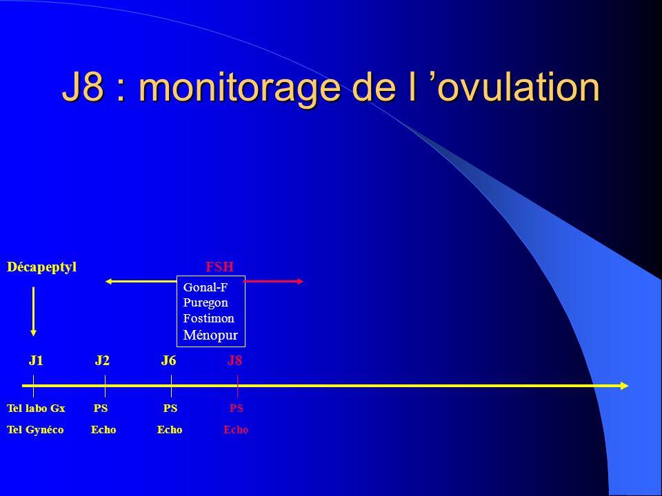 J10 : monitorage de l ovulation DécapeptylFSH Tel labo Gx PS PS PS PS Tel Gynéco Echo Echo Echo Echo Gonal-F Puregon Fostimon Ménopur J1J2J6J8J10
