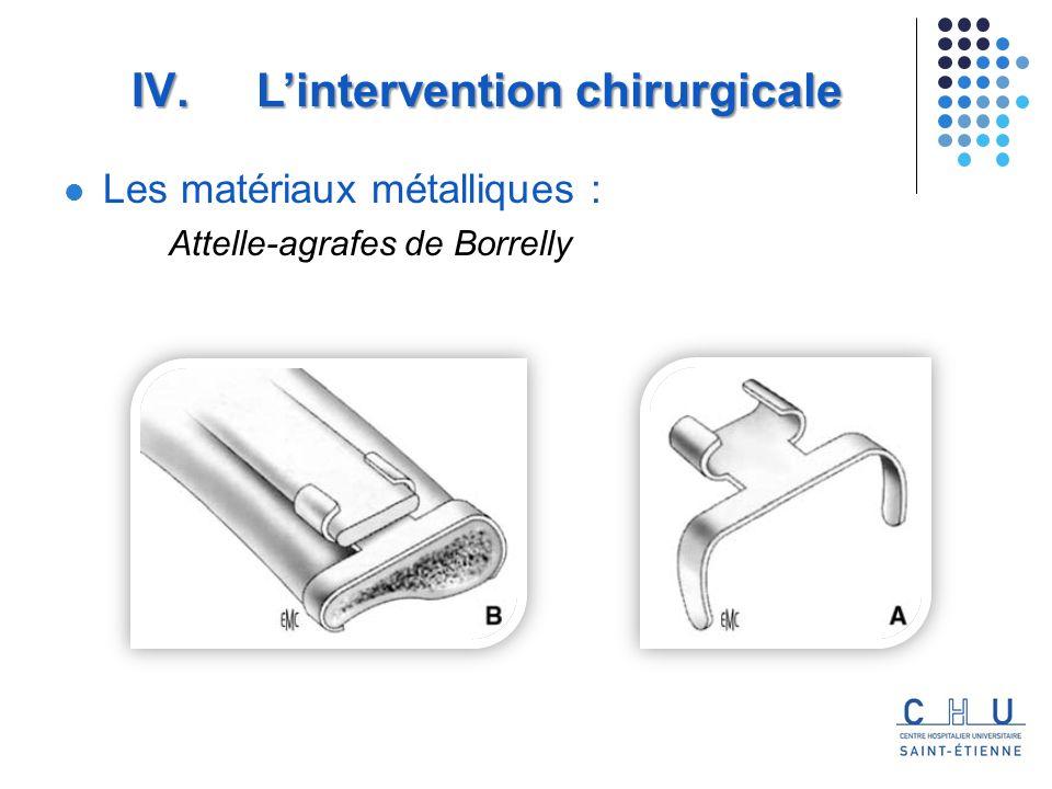 Les matériaux métalliques : Attelle-agrafes de Borrelly IV. Lintervention chirurgicale