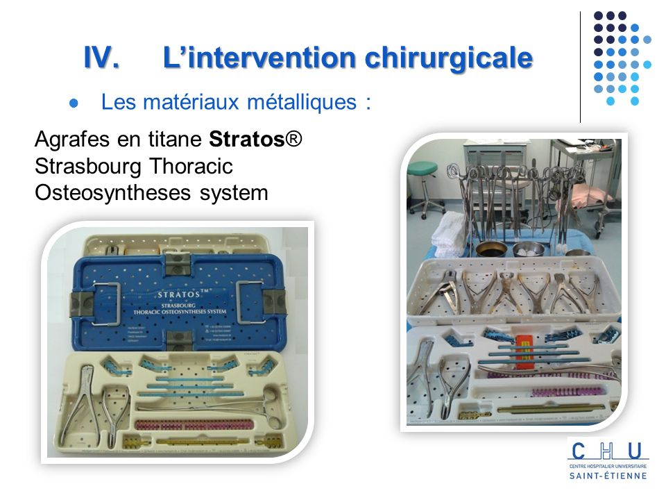 Agrafes en titane Stratos® Strasbourg Thoracic Osteosyntheses system Les matériaux métalliques : IV. Lintervention chirurgicale