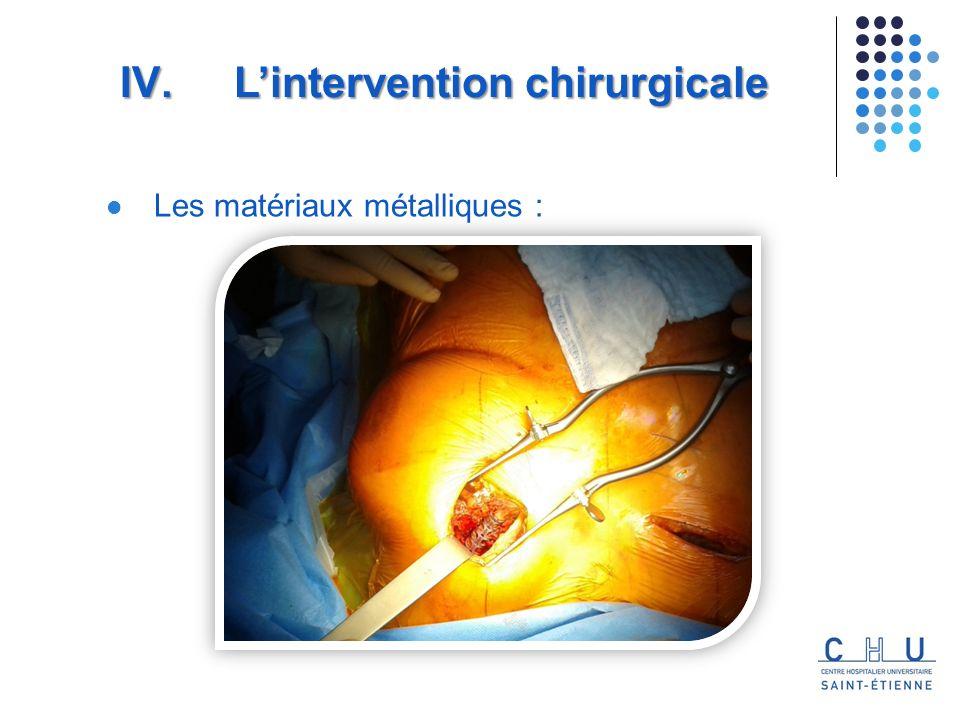 Les matériaux métalliques : IV. Lintervention chirurgicale