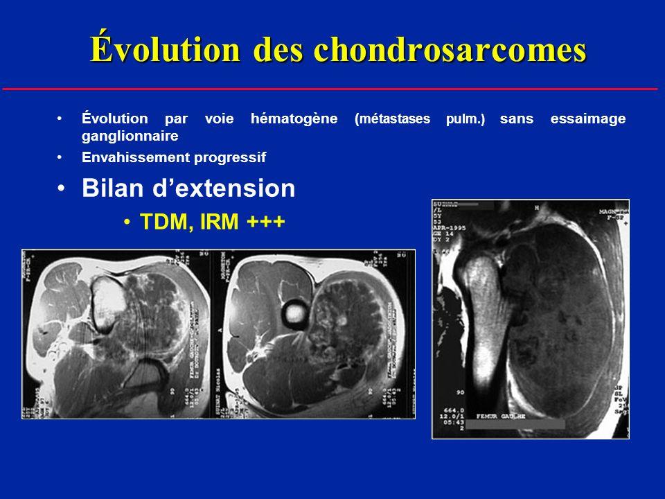 Évolution des chondrosarcomes Évolution par voie hématogène ( métastases pulm.) sans essaimage ganglionnaire Envahissement progressif Bilan dextension TDM, IRM +++