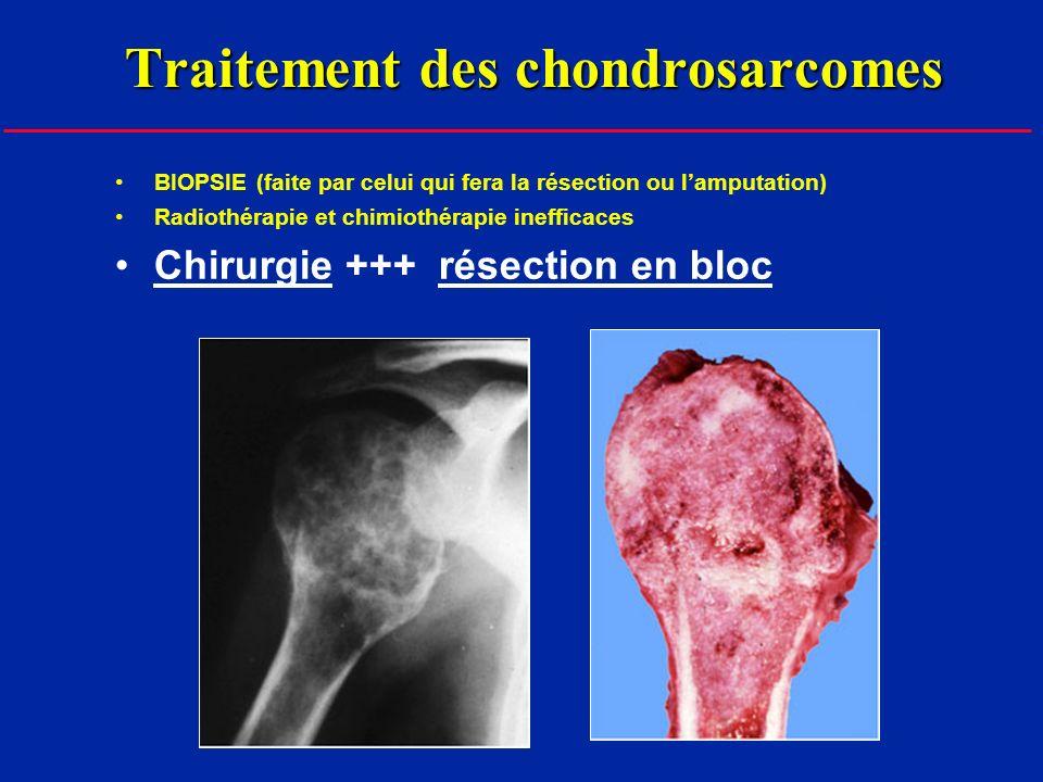 Traitement des chondrosarcomes BIOPSIE (faite par celui qui fera la résection ou lamputation) Radiothérapie et chimiothérapie inefficaces Chirurgie +++ résection en bloc