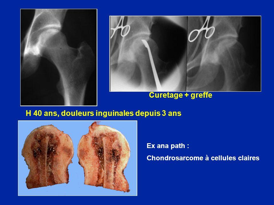 H 40 ans, douleurs inguinales depuis 3 ans Curetage + greffe Ex ana path : Chondrosarcome à cellules claires