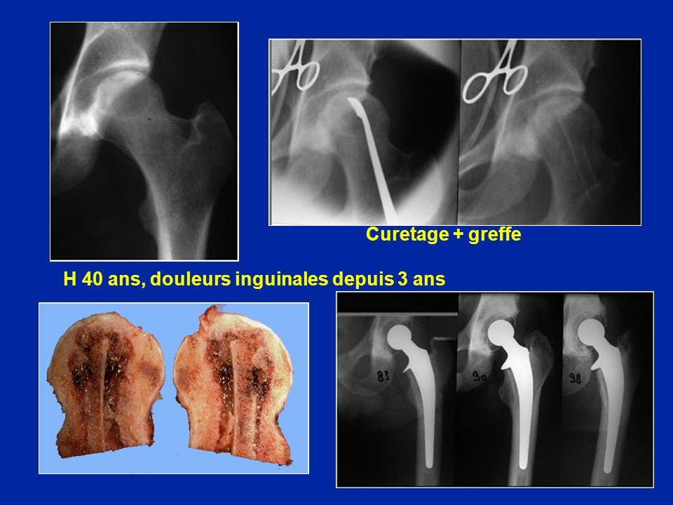 H 40 ans, douleurs inguinales depuis 3 ans Curetage + greffe