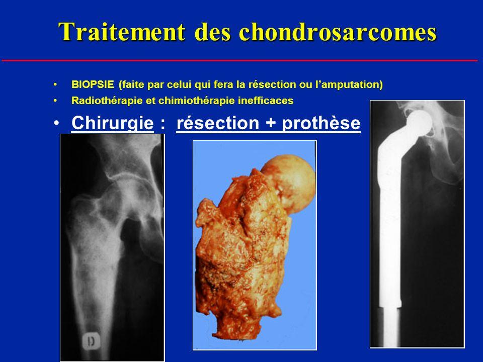 Traitement des chondrosarcomes BIOPSIE (faite par celui qui fera la résection ou lamputation) Radiothérapie et chimiothérapie inefficaces Chirurgie : résection + prothèse