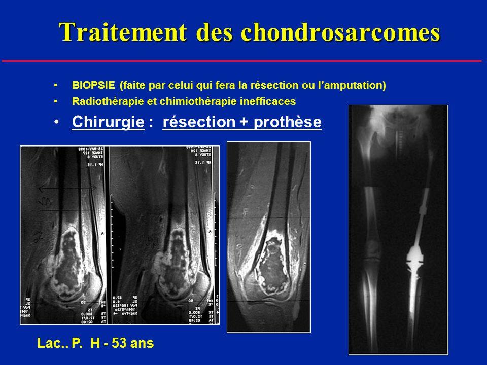 Traitement des chondrosarcomes BIOPSIE (faite par celui qui fera la résection ou lamputation) Radiothérapie et chimiothérapie inefficaces Chirurgie : résection + prothèse Lac..