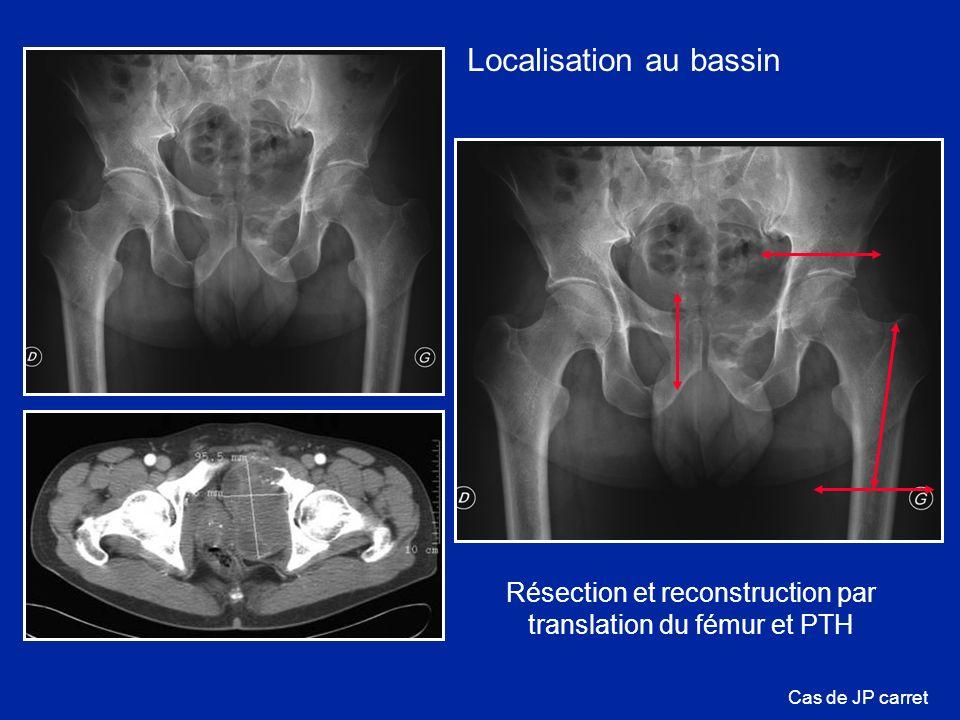 Cas de JP carret Résection et reconstruction par translation du fémur et PTH Localisation au bassin
