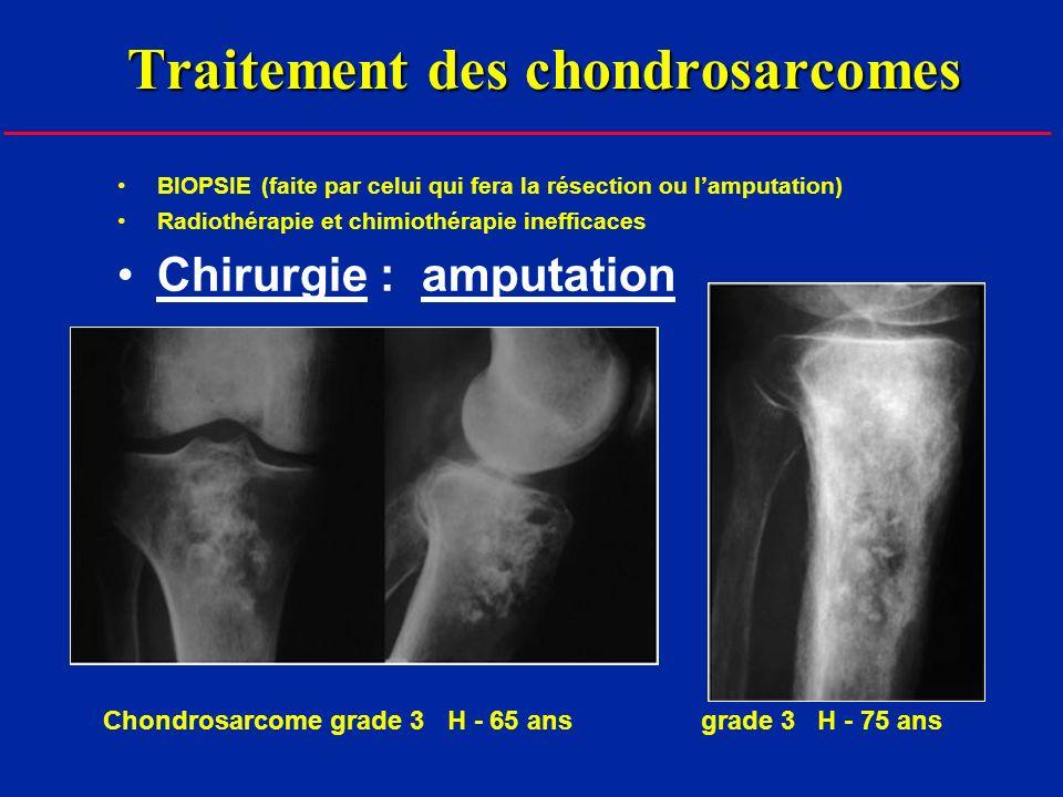 Traitement des chondrosarcomes BIOPSIE (faite par celui qui fera la résection ou lamputation) Radiothérapie et chimiothérapie inefficaces Chirurgie : amputation Chondrosarcome grade 3 H - 65 ans grade 3 H - 75 ans