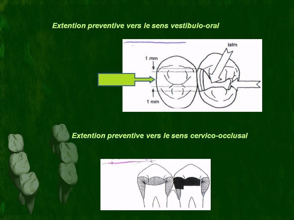 Extention preventive vers le sens vestibulo-oral Extention preventive vers le sens cervico-occlusal