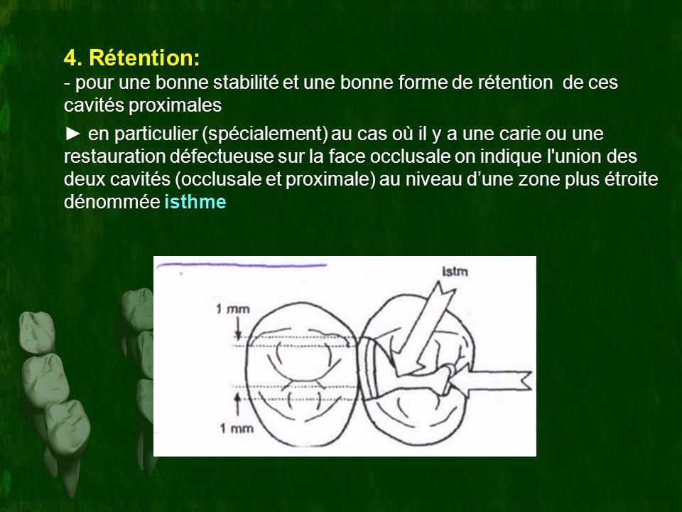 . Rétention: 4. Rétention: - pour une bonne stabilité et une bonne forme de rétention de ces cavités proximales spécialement) au cas où il y a une car