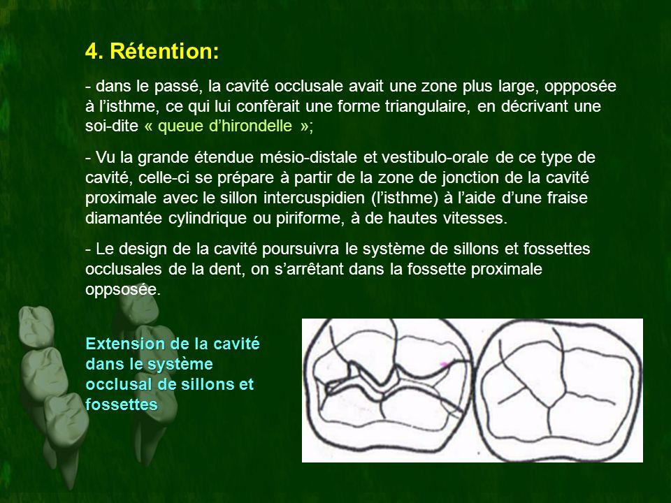 4. Rétention: « queue dhirondelle »; - dans le passé, la cavité occlusale avait une zone plus large, oppposée à listhme, ce qui lui confèrait une form