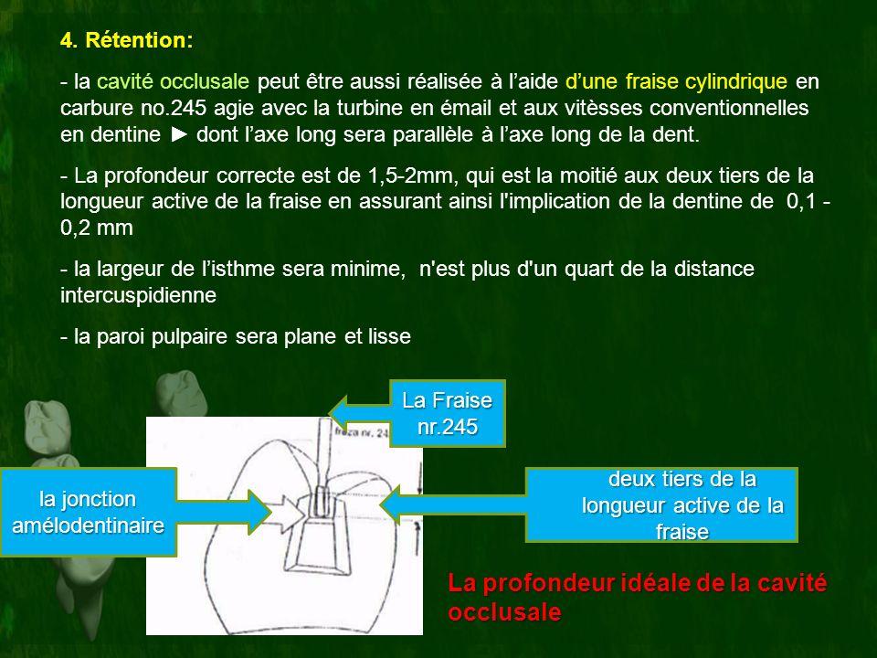 4. Rétention: - la cavité occlusale peut être aussi réalisée à laide dune fraise cylindrique en carbure no.245 agie avec la turbine en émail et aux vi