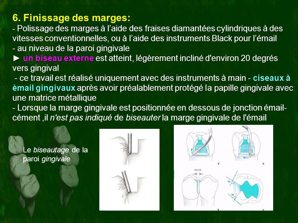 6. Finissage des marges: Polissage des marges à laide des fraises diamantées cylindriques à des vitesses conventionnelles, ou à laide des instruments