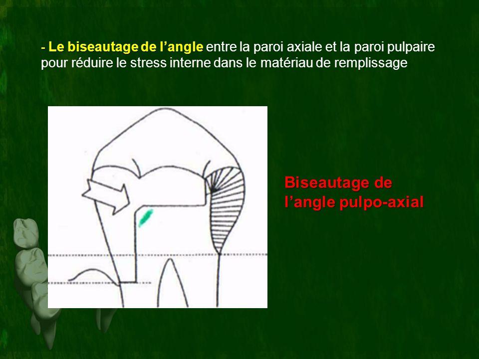 Biseautage de langle pulpo-axial - Le biseautage de langle - Le biseautage de langle entre la paroi axiale et la paroi pulpaire pour réduire le stress
