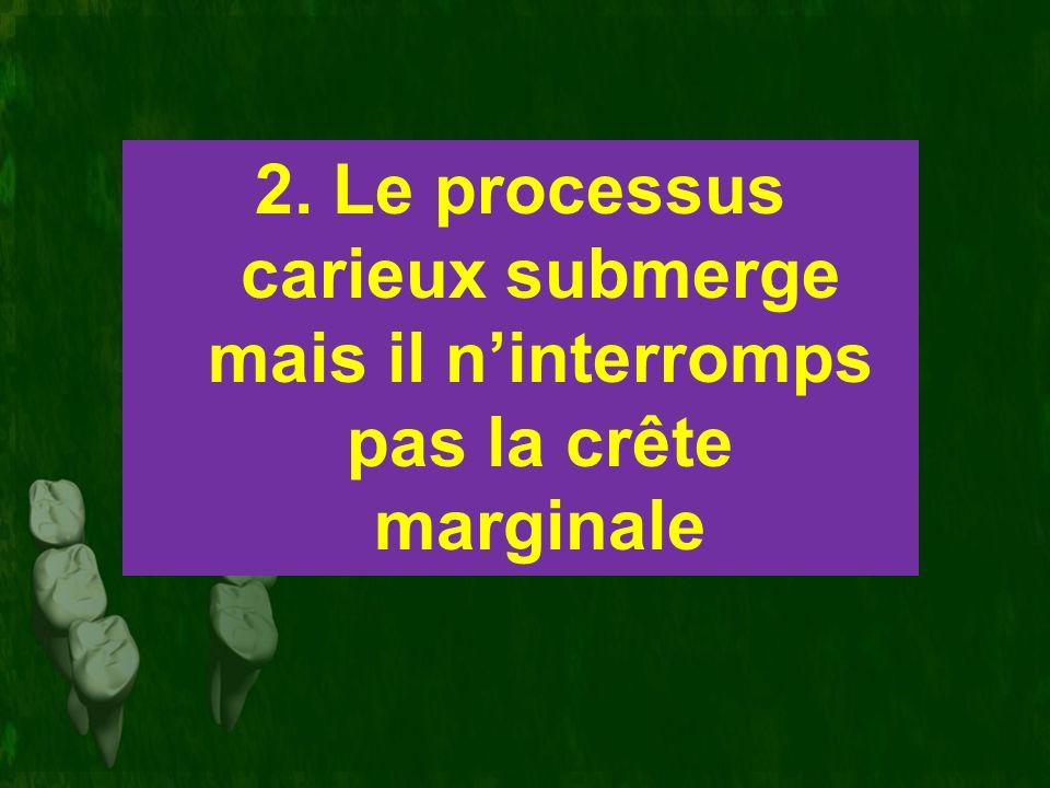 2. Le processus carieux submerge mais il ninterromps pas la crête marginale