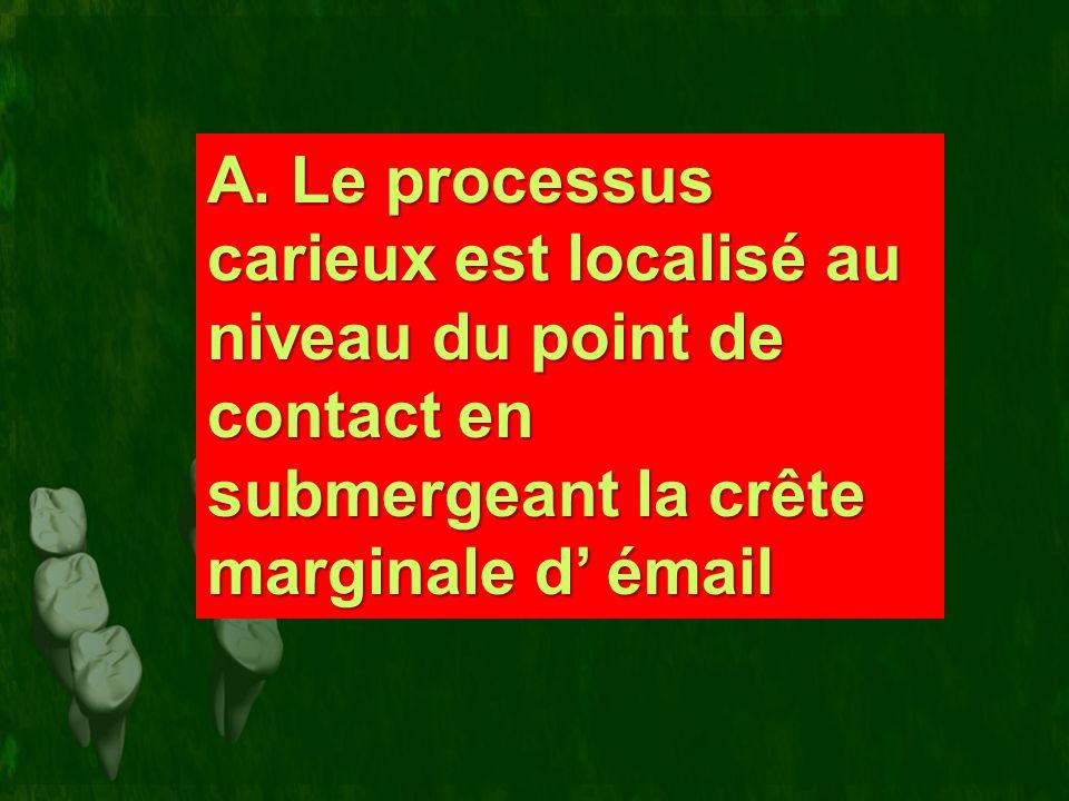 A. Le processus carieux est localisé au niveau du point de contact en submergeant la crête marginale d émail A. Le processus carieux est localisé au n