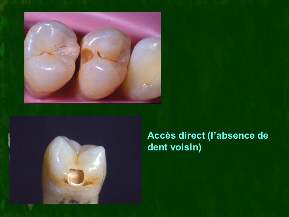 Accès direct (labsence de dent voisin)