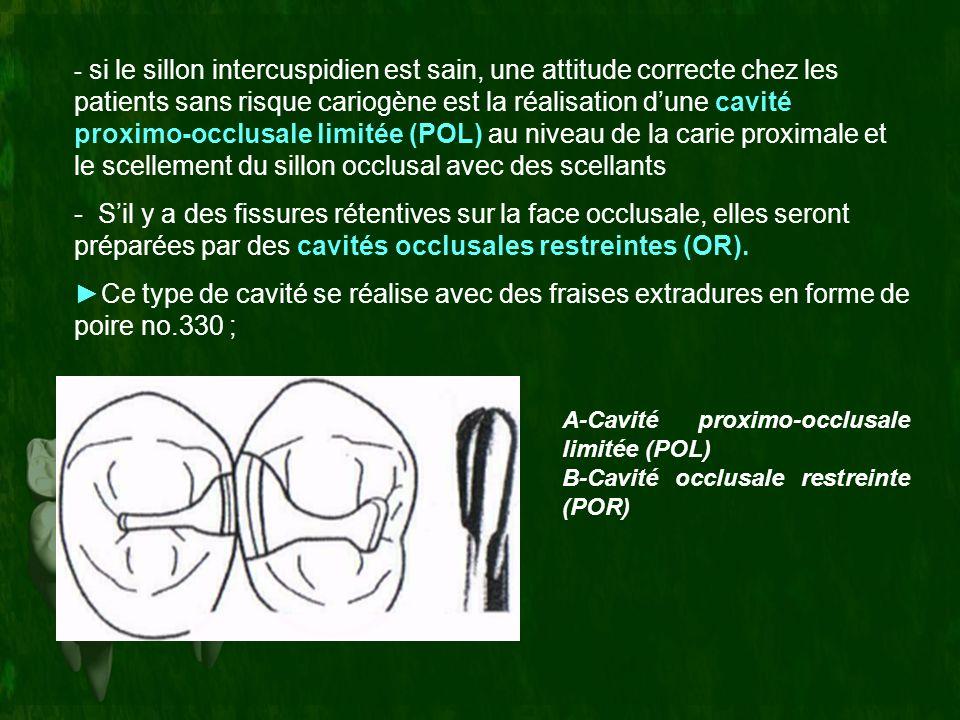 - si le sillon intercuspidien est sain, une attitude correcte chez les patients sans risque cariogène est la réalisation dune cavité proximo-occlusale