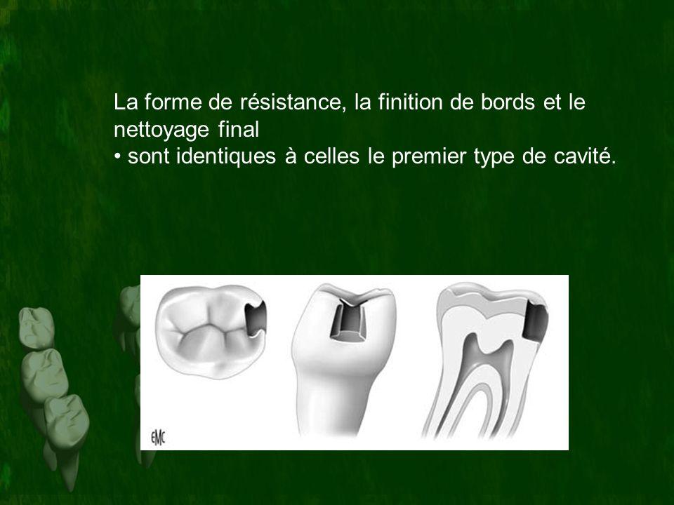 La forme de résistance, la finition de bords et le nettoyage final sont identiques à celles le premier type de cavité.
