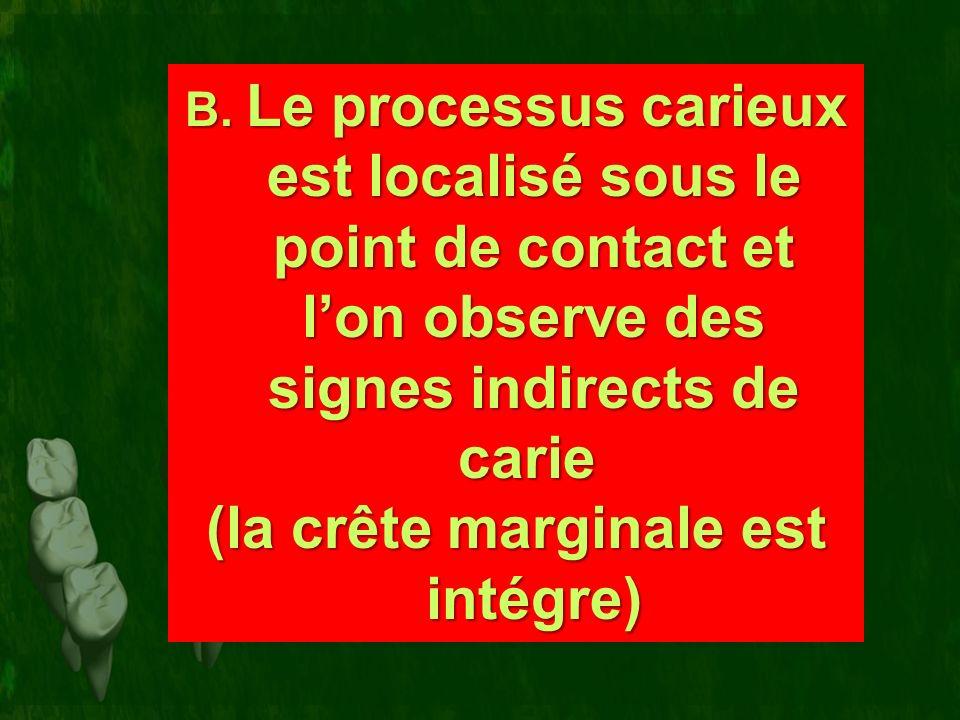 B. Le processus carieux est localisé sous le point de contact et lon observe des signes indirects de carie B. Le processus carieux est localisé sous l