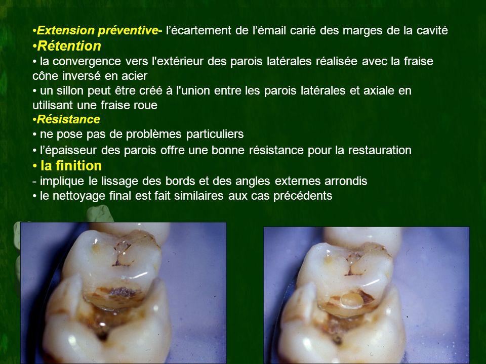 Extension préventive- lécartement de lémail carié des marges de la cavité Rétention la convergence vers l'extérieur des parois latérales réalisée avec