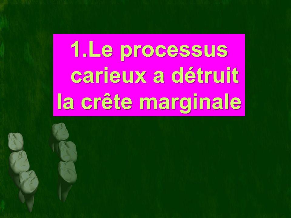 1.Le processus carieux a détruit la crête marginale
