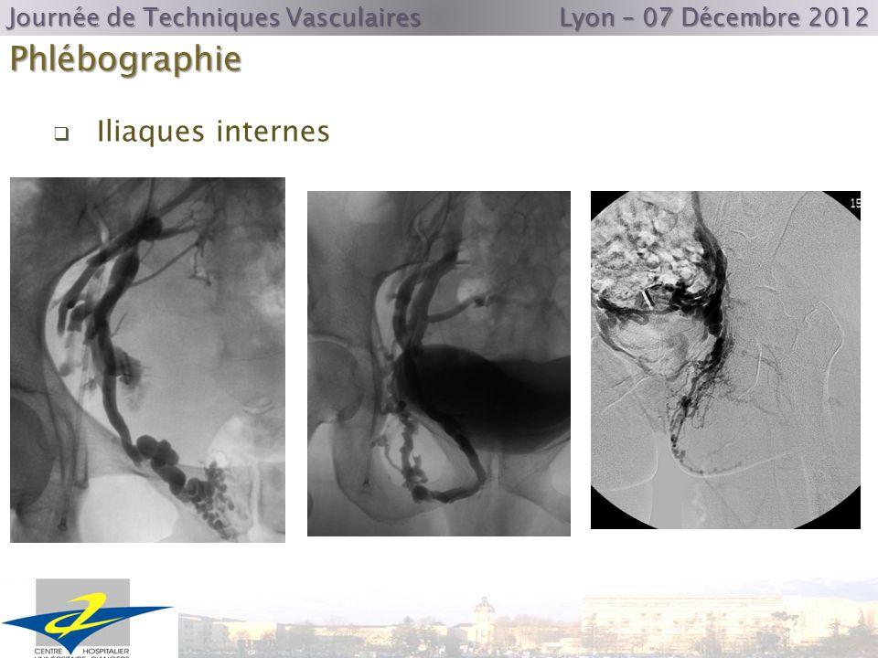 Phlébographie Journée de Techniques Vasculaires Lyon – 07 Décembre 2012 Iliaques internes