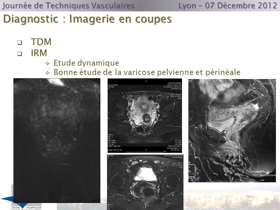 Diagnostic : Imagerie en coupes Journée de Techniques Vasculaires Lyon – 07 Décembre 2012 TDM IRM Etude dynamique Bonne étude de la varicose pelvienne