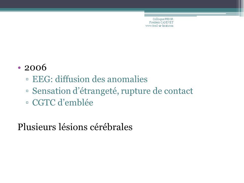 2006 EEG: diffusion des anomalies Sensation détrangeté, rupture de contact CGTC demblée Plusieurs lésions cérébrales Colloque PRIOR Frédéric CANEVET w