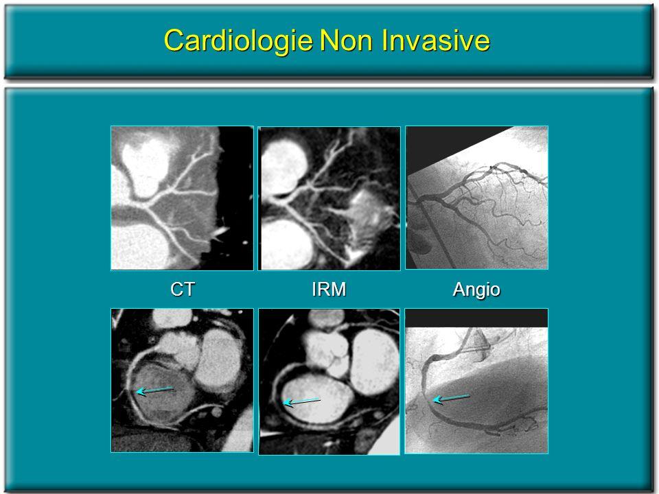 CTIRM Angio Cardiologie Non Invasive