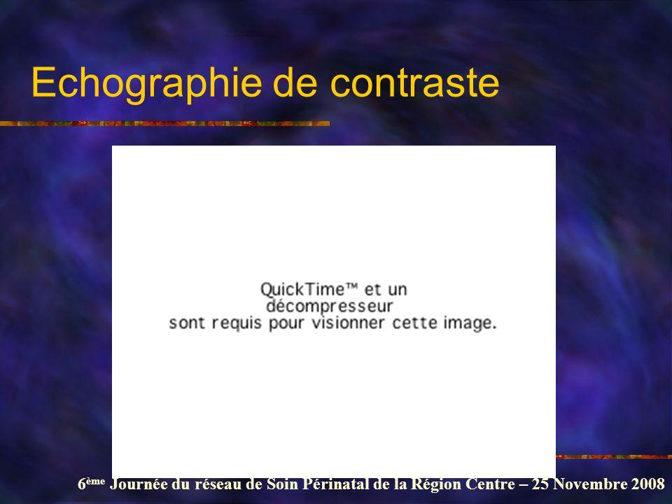 6 ème Journée du réseau de Soin Périnatal de la Région Centre – 25 Novembre 2008 Echographie de contraste