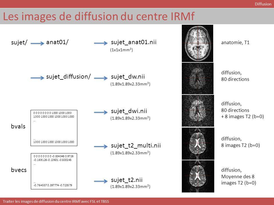 Traiter les images de diffusion du centre IRMf avec FSL et TBSS TBSS: tract-based spatial statistics - méthode TBSS Sujet1_FA.nii Sujet2_FA.nii SujetN_FA.nii … Recalage vers un template commun (non-linéaire) Transformation (affine) vers un espace standard (e.g.