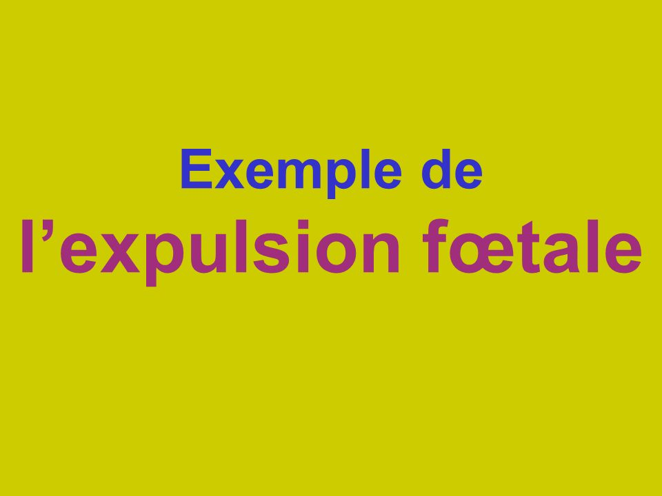 Exemple de lexpulsion fœtale