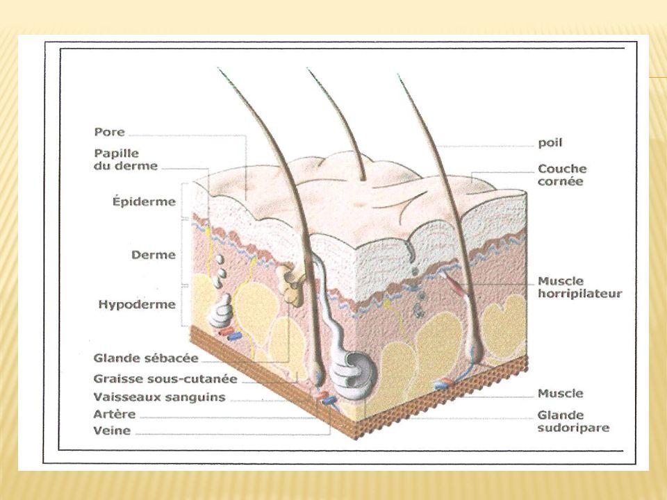 Premier degré - Atteinte: Epiderme superficiel - Signes: Rougeur-Chaleur-Douleur (Erythème) - Cicatrisation: 3 à 4 jours sans séquelles