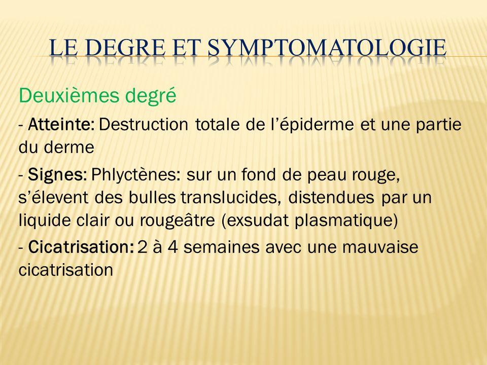 Deuxièmes degré - Atteinte: Destruction totale de lépiderme et une partie du derme - Signes: Phlyctènes: sur un fond de peau rouge, sélevent des bulle