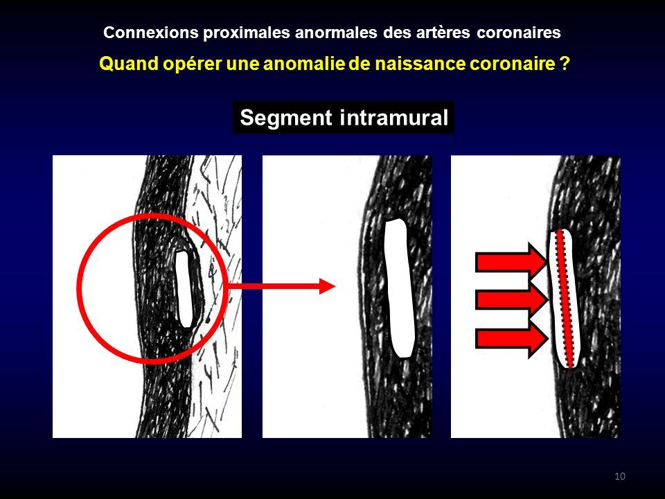 10 Connexions proximales anormales des artères coronaires Segment intramural Quand opérer une anomalie de naissance coronaire ?