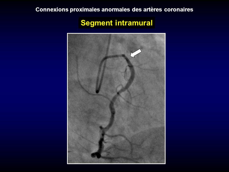Connexions proximales anormales des artères coronaires Segment intramural