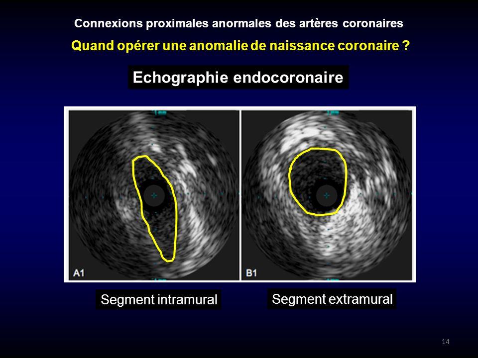 14 Segment intramural Segment extramural Connexions proximales anormales des artères coronaires Echographie endocoronaire Quand opérer une anomalie de