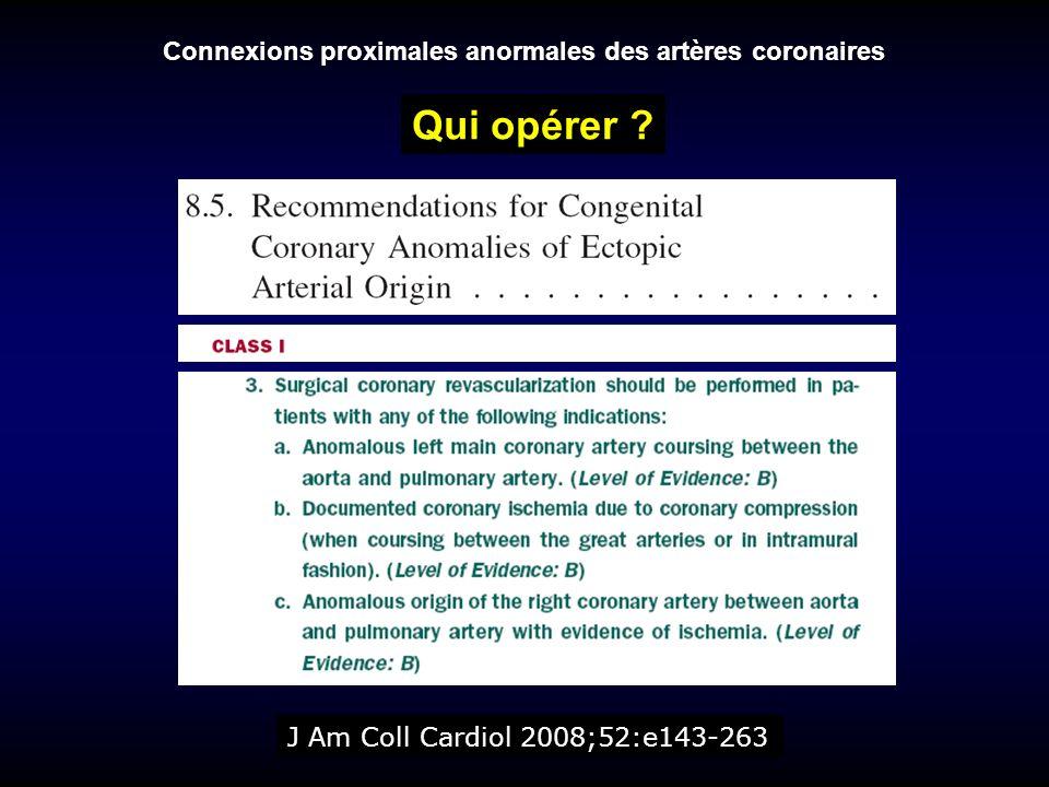 Connexions proximales anormales des artères coronaires J Am Coll Cardiol 2008;52:e143-263 Qui opérer ?
