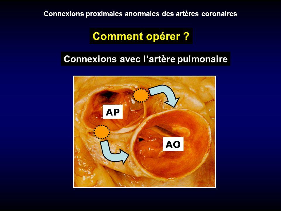 Connexions proximales anormales des artères coronaires Comment opérer ? AO AP Connexions avec lartère pulmonaire