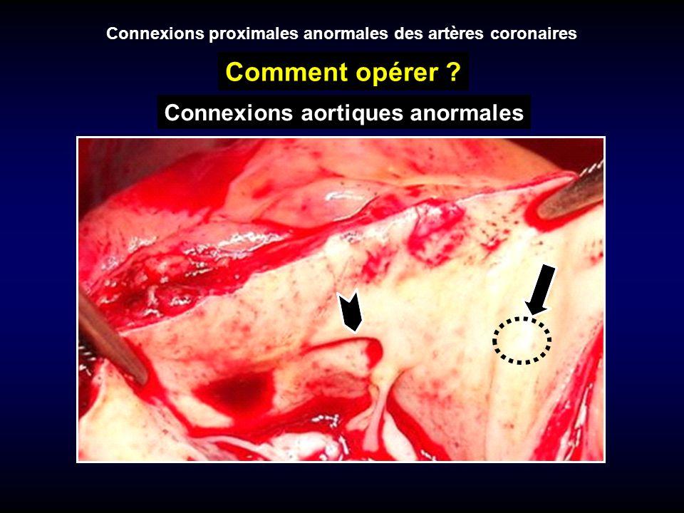 Connexions proximales anormales des artères coronaires Comment opérer ? Connexions aortiques anormales