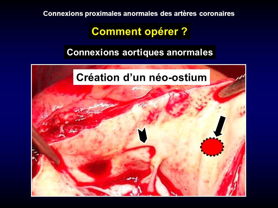 Connexions proximales anormales des artères coronaires Comment opérer ? Création dun néo-ostium Connexions aortiques anormales