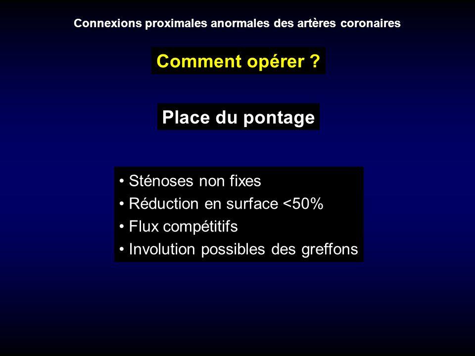 Connexions proximales anormales des artères coronaires Comment opérer ? Place du pontage Sténoses non fixes Réduction en surface <50% Flux compétitifs
