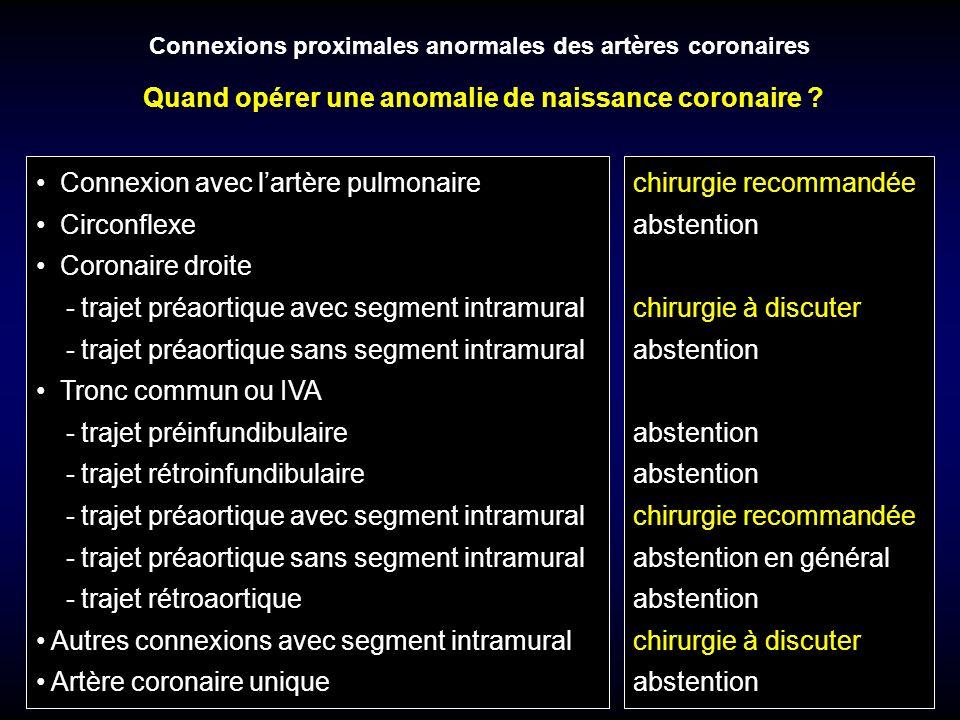 Connexions proximales anormales des artères coronaires Connexion avec lartère pulmonaire Circonflexe Coronaire droite - trajet préaortique avec segmen