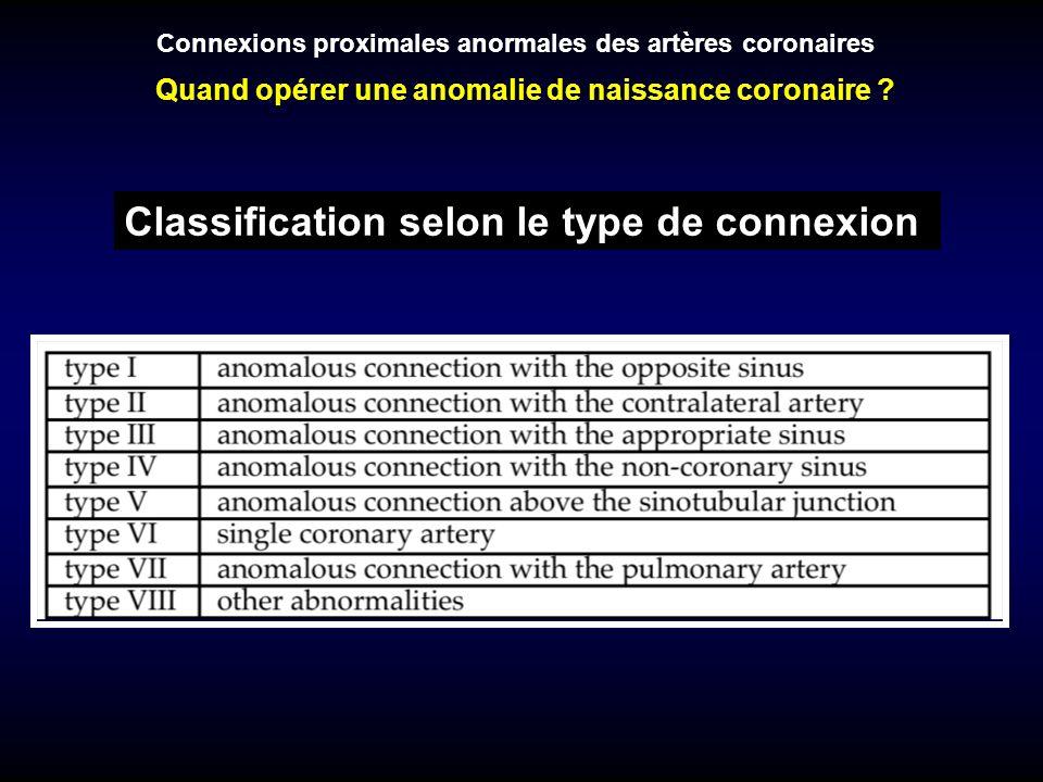 Classification selon le risque Trajet préaortique Segment intramural Connexion avec lartère pulmonaire Connexions proximales anormales des artères coronaires Quand opérer une anomalie de naissance coronaire ?
