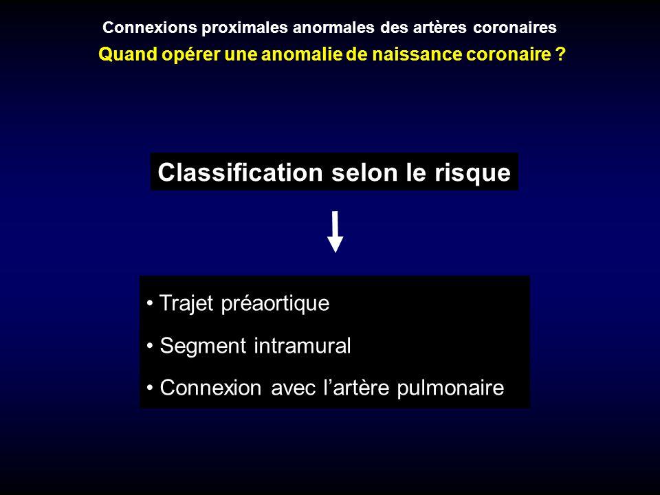 Classification selon le risque Trajet préaortique Segment intramural Connexion avec lartère pulmonaire Connexions proximales anormales des artères cor
