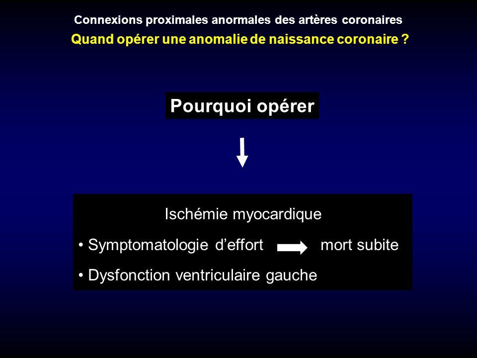 Pourquoi opérer Connexions proximales anormales des artères coronaires Quand opérer une anomalie de naissance coronaire ? Ischémie myocardique Symptom