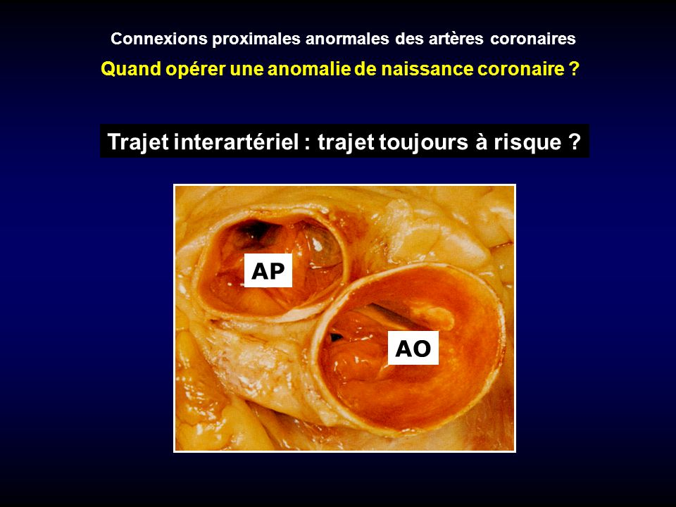 Connexions proximales anormales des artères coronaires Connexion avec lartère pulmonaire Circonflexe Coronaire droite - trajet préaortique avec segment intramural - trajet préaortique sans segment intramural Tronc commun ou IVA - trajet préinfundibulaire - trajet rétroinfundibulaire - trajet préaortique avec segment intramural - trajet préaortique sans segment intramural - trajet rétroaortique Autres connexions avec segment intramural Artère coronaire unique chirurgie recommandée abstention chirurgie à discuter abstention chirurgie recommandée abstention en général abstention chirurgie à discuter abstention Quand opérer une anomalie de naissance coronaire ?