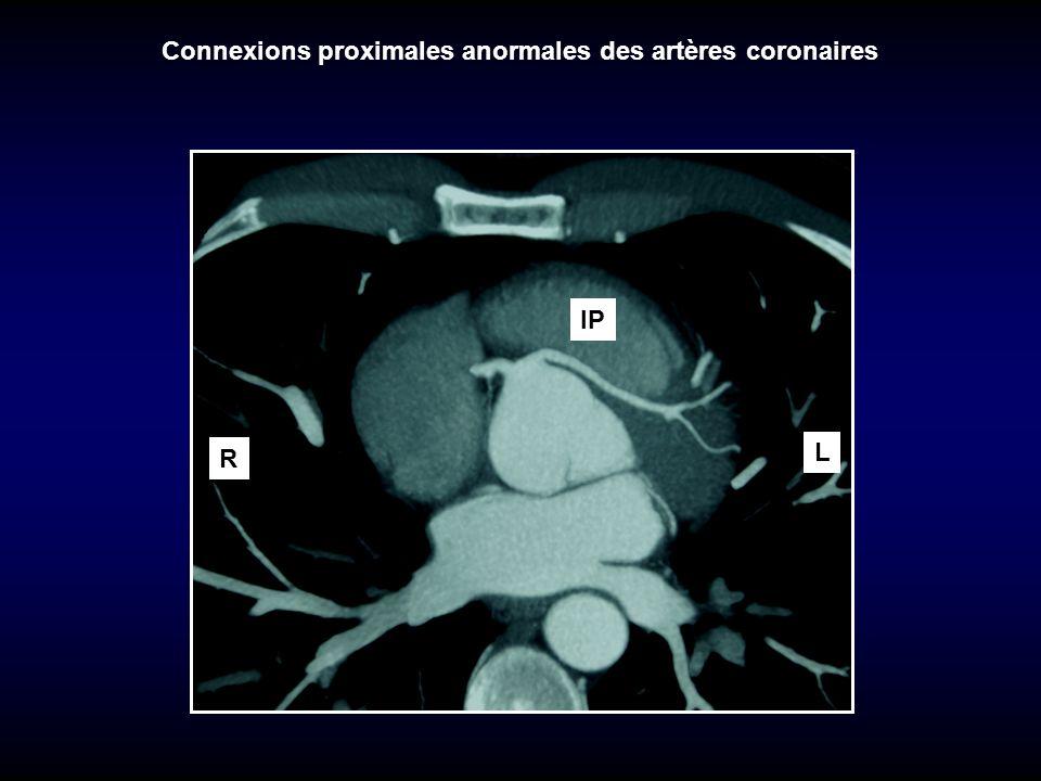 TP VD Connexions proximales anormales des artères coronaires AO