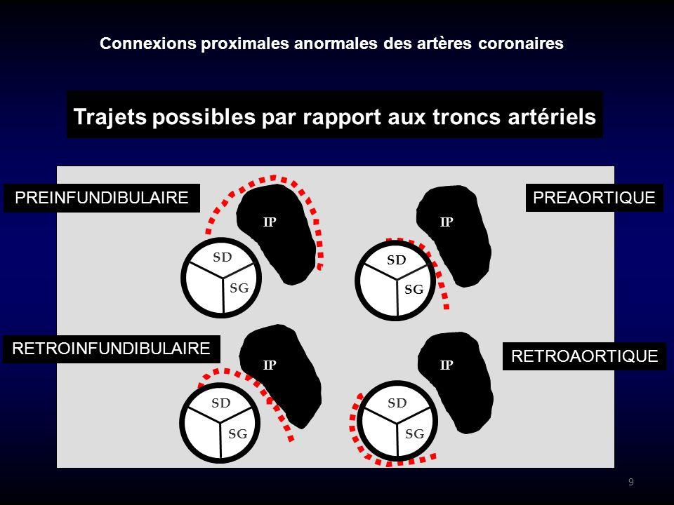 9 PREINFUNDIBULAIRE IP SD SG PREAORTIQUE RETROAORTIQUE RETROINFUNDIBULAIRE Connexions proximales anormales des artères coronaires Trajets possibles pa